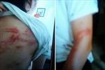Hai cháu bé ở Hà Nội bị bố bạo hành đang ở nhà bác ruột