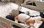 Bé gái 20 tháng tuổi bị bỏng nặng khi vấp dây điện ấm đun siêu tốc