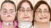 Bệnh nhân ghép mặt tìm lại niềm tin sau phẫu thuật