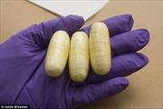 Tìm thấy 104 gói ma túy trong bụng bé 11 tuổi