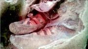 Xác ướp cổ đại đi giày Adidas?