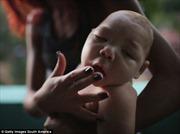 Thái Lan xác nhận 2 trẻ sơ sinh đầu nhỏ vì Zika