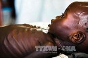 Nạn đói đe dọa sự sống của 1,4 triệu trẻ em châu Phi