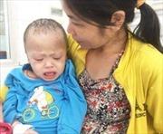 Mẹ nghèo bất lực nhìn con trai 5 tuổi nguy cơ tử vong vì bệnh lạ