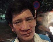 Hà Nội: Thêm một công nhân môi trường bị hành hung