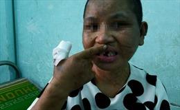 Bộ LĐTBXH đề nghị tỉnh Gia Lai xử lý nghiêm vụ bạo hành người làm công