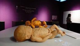 Bộ Văn hóa yêu cầu giải trình triển lãm dùng bộ phận cơ thể người thật