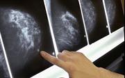 Chẩn đoán ung thư vú chỉ trong 10 phút