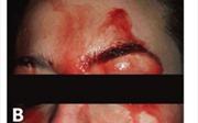 Căn bệnh lạ: Chảy mồ hôi 'máu' nhễ nhại mặt mũi tay chân