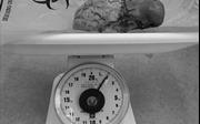 Mất 2 giờ bóc tách khối u xơ nặng 2kg trong tử cung một phụ nữ