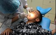 Cách chăm sóc phòng bệnh sâu răng cho trẻ