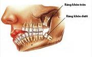 Nhổ răng khôn có thể gặp những nguy hiểm gì?